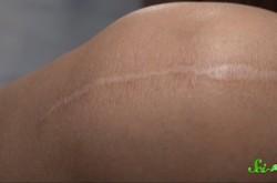 傷口を縫ったあと、抜糸をしないとどうなる?