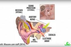 難聴の人を助ける「人工内耳」では世界はどのように聞こえるか