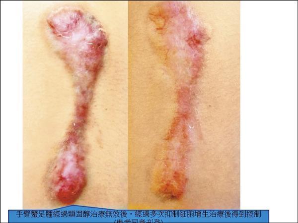 「蟹足腫」肥厚疤痕 有創新療法 - 即時新聞 - 自由健康網