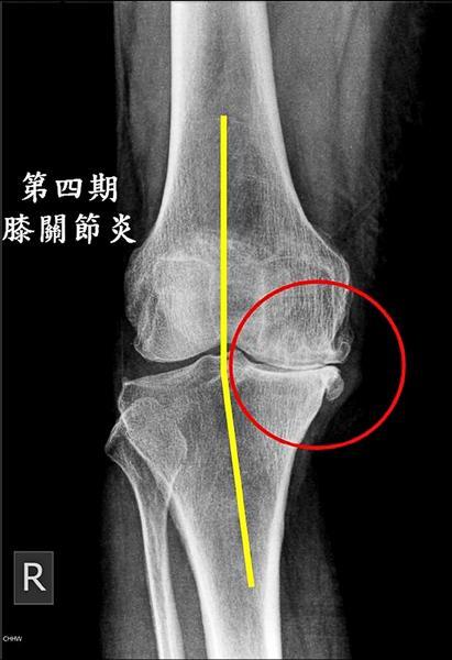 一針救膝蓋 不是人人都能打 - 即時新聞 - 自由健康網