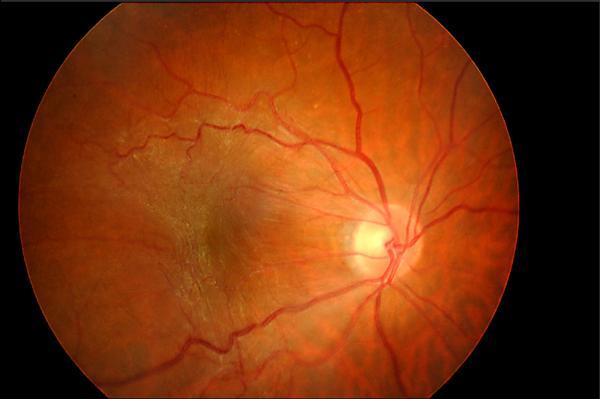 眼睛有層膜…黃斑部皺褶徵兆 - 即時新聞 - 自由健康網