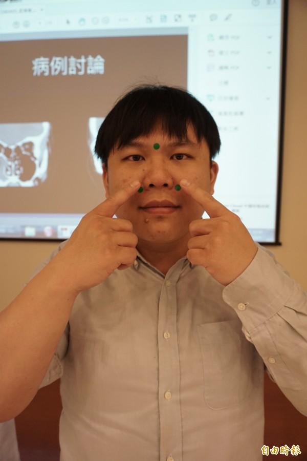 醫病》罹患鼻竇炎頭痛欲裂 中醫治療有解 - 健康醫療 - 自由電子報