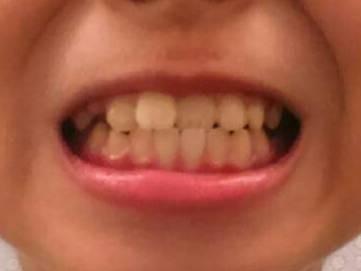 醫病》兒童牙齒矯正 不一定要等到12歲 - 生活 - 自由時報電子報