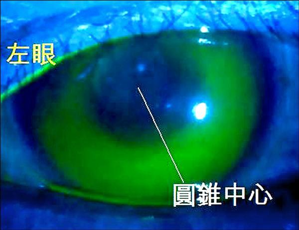 退化性「圓錐角膜」 可戴特殊隱形眼鏡矯正 - - 自由時報電子報