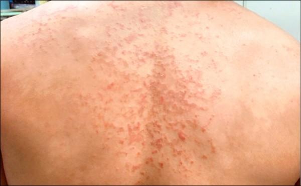 色素性癢疹誤為濕疹 後背有如紅色圓網 - 生活 - 自由時報電子報