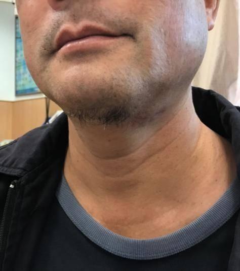醫病》拔智齒突變「大脖子」 56歲男險致命 - - 自由時報電子報