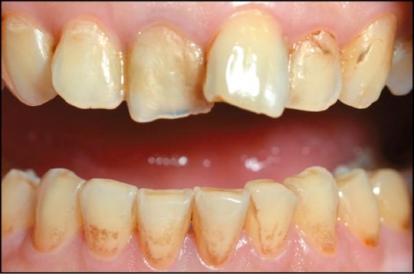 【生活撇步】拒牙齒酸蝕!快改掉這些NG習慣 - 生活週報 - 自由時報電子報