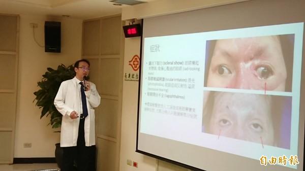 醫病》意外燒傷致眼睛易乾,不停流淚 整型手術重建 - - 自由時報電子報