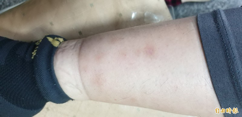野狗為患跳蚤入侵 東港電臺、安檢所受害 - 生活 - 自由時報電子報