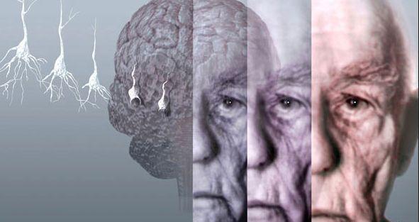 Педагоги, юристы и соцработники менее всего подвержены болезни Альцгеймера. мозг