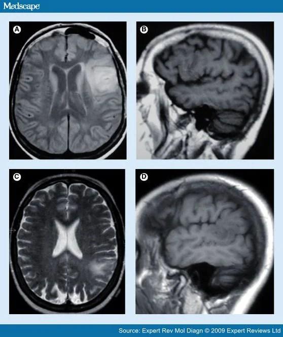 MRI T2 vs T1 httpwwwsurgicalneurologyintcomarticle