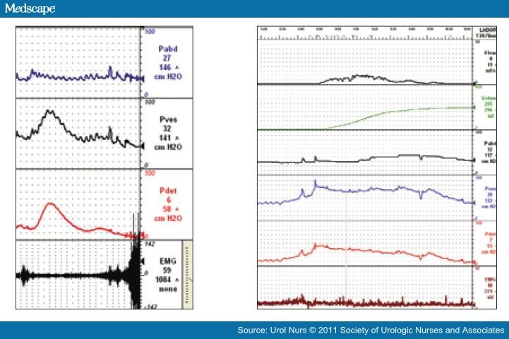 Electromyography of the Pelvic Floor Muscles