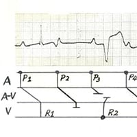 Identify the Conduction Problem
