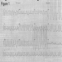 A 37-Year-Old Woman With Palpitations and Near Syncope