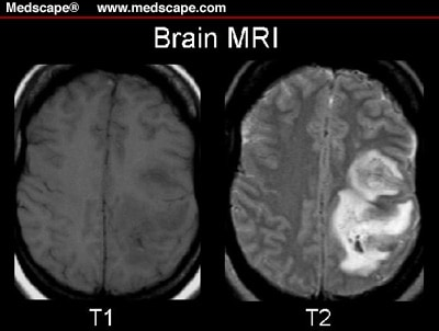 A 39YearOld Woman With Headaches Seizures and Aphasia