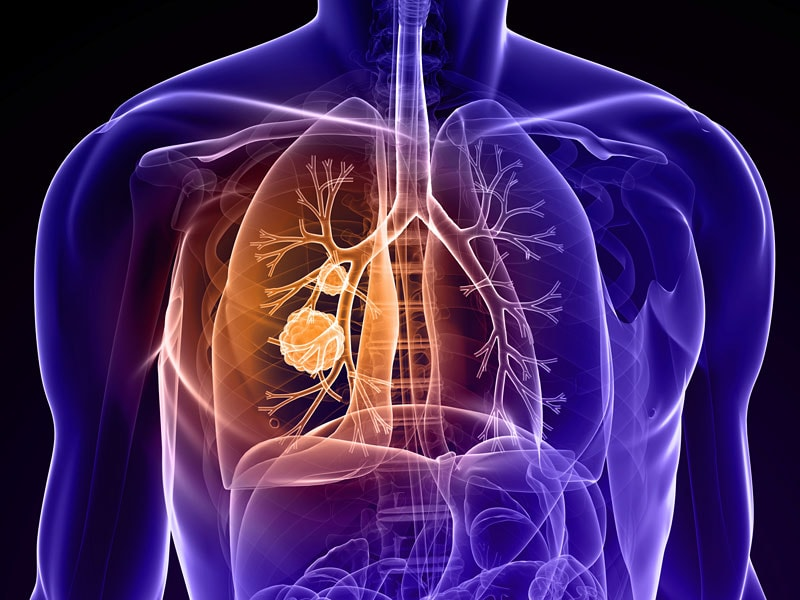 Atezolizumab FirstChoice Immunotherapy in SecondLine NSCLC
