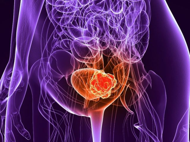 Image result for bladder cancer