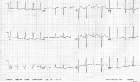 Myocardial Infarction Workup: Approach Considerations