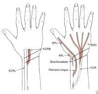 Tendon Transfers: History, Concepts, Timing of Tendon Transfer
