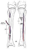 Tibia Reconstruction Treatment & Management