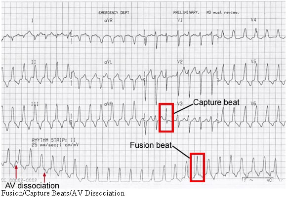 Image result for fusion beat ecg
