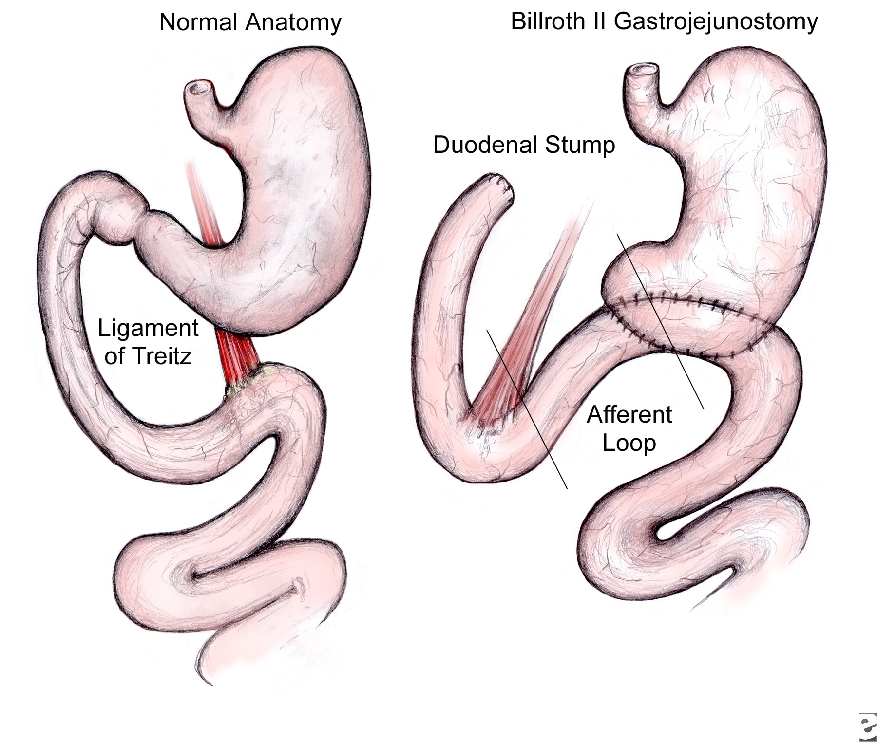 gastric bypass diagram tao 125 atv wiring afferent loop syndrome radiology notes