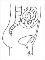Radiation Enteritis and Proctitis Treatment & Management