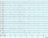Normal Awake EEG - A 10-second segment showing a well-formed and well-regulated alpha rhythm at 9 Hz.