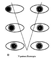 V-Pattern Esotropia and Exotropia: Background