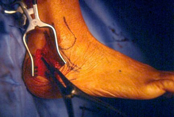 The calcaneal osteotomy is distracted with a lami...