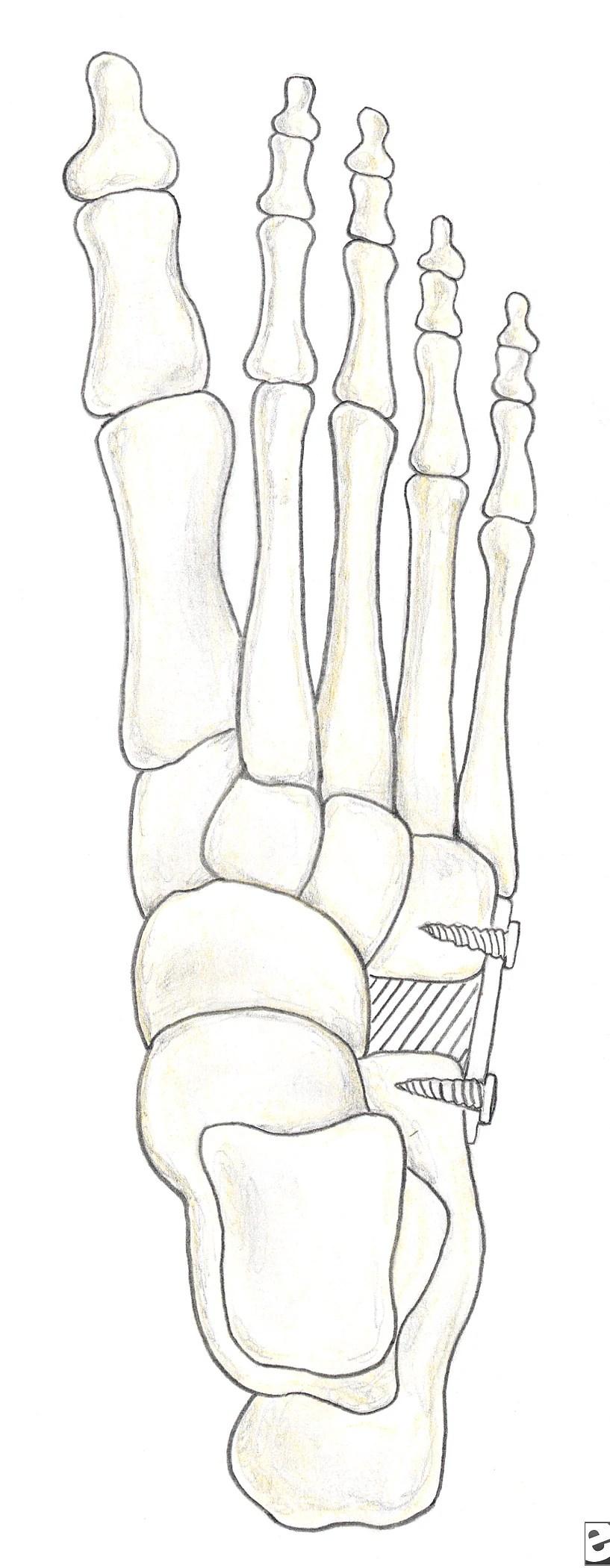 Distraction arthrodesis of the calcaneocuboid joi...