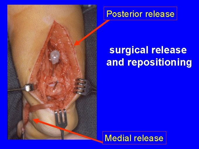 Posteromedial release for clubfoot.