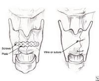 Fractures, Cartilage