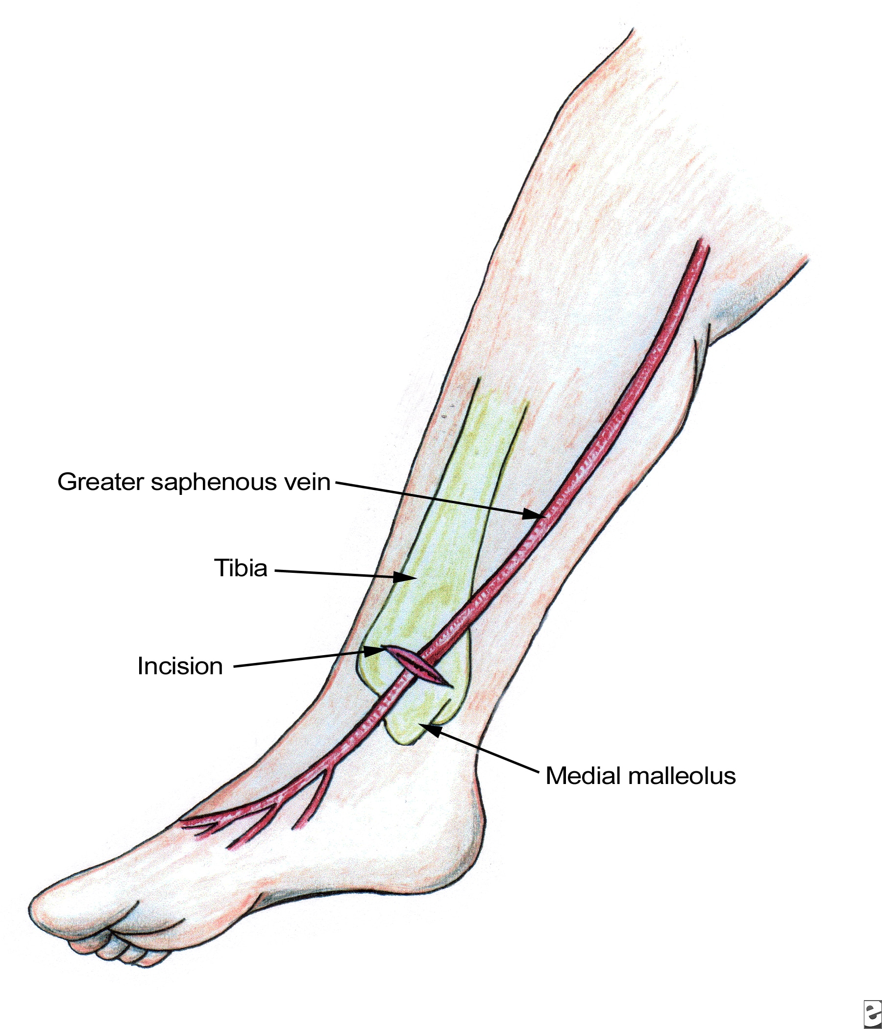 veins in the foot diagram jaguar x type engine search results for saphenous  calendar 2015