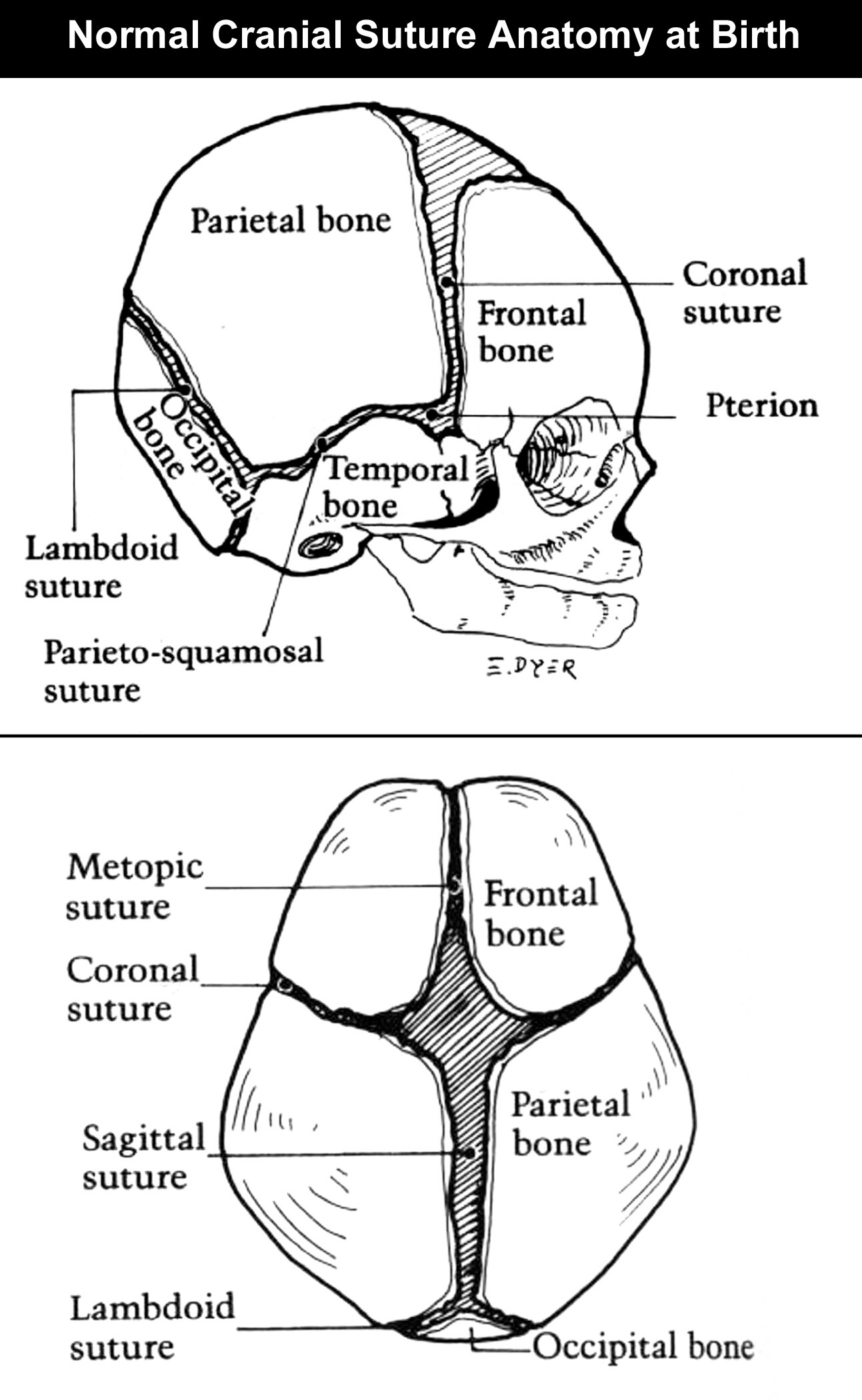 Cranial Sutures Pictures