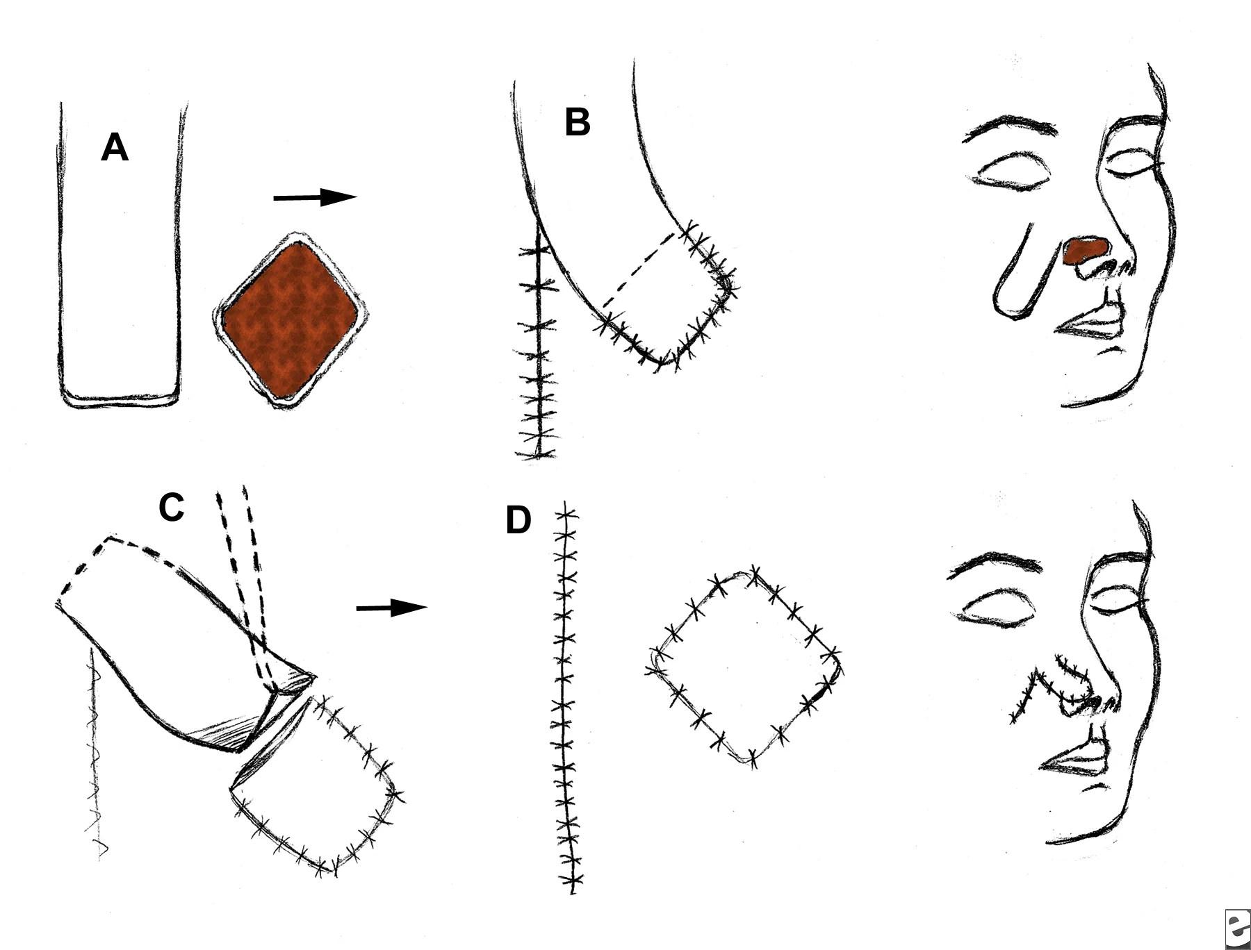 Oral Amp Maxillo Facial Surgery Flaps Classification