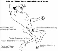 The typical contractures of