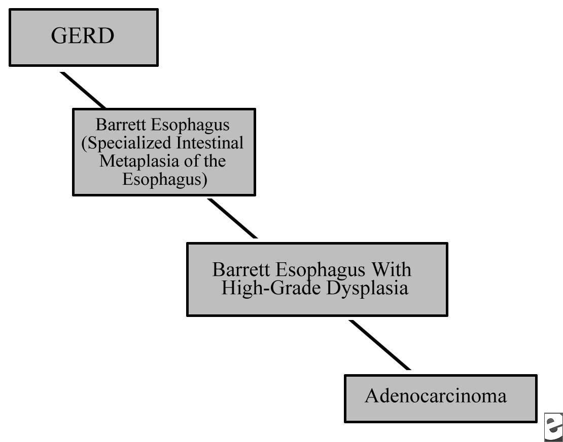 hight resolution of diagram of gerd pain