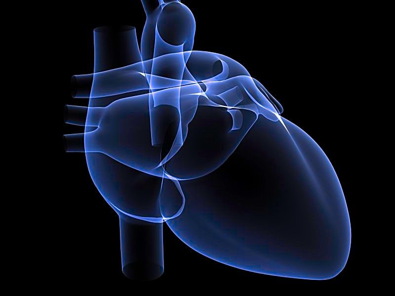 Colchicine 'Useless' for Postop Pericardial Effusion: POPE-2