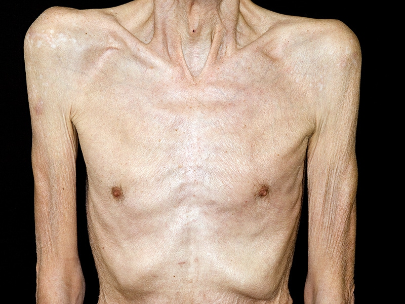 Elderly Woman With Copd
