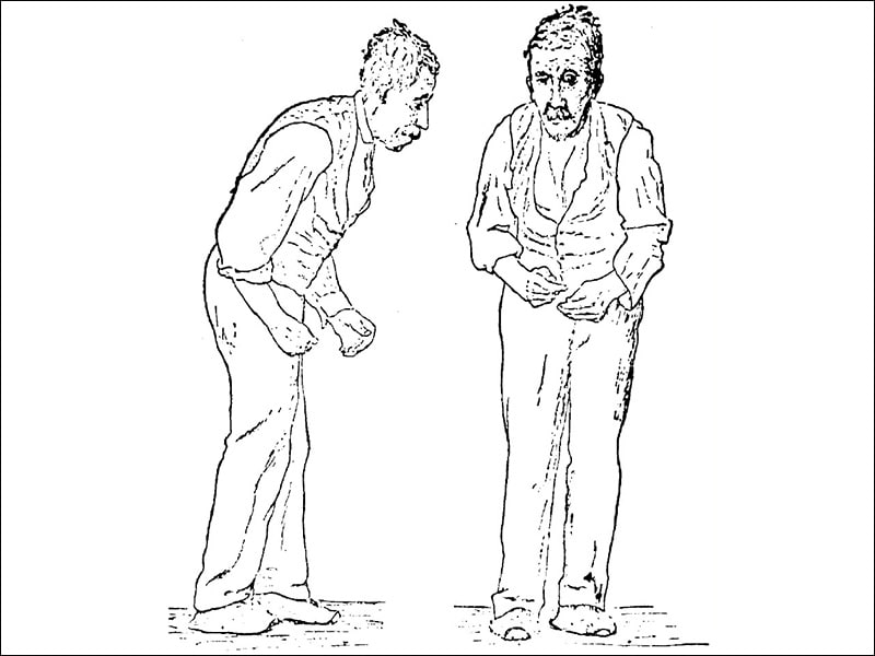 Gait Freezing in Parkinson Disease