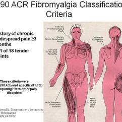 18 Tender Points Of Fibromyalgia Diagram Fuse Board Wiring Disease Management Strategies Figure 1 These Criteria Provided Very Good Specificity And Sensitivity In Differentiating From Other Causes Chronic