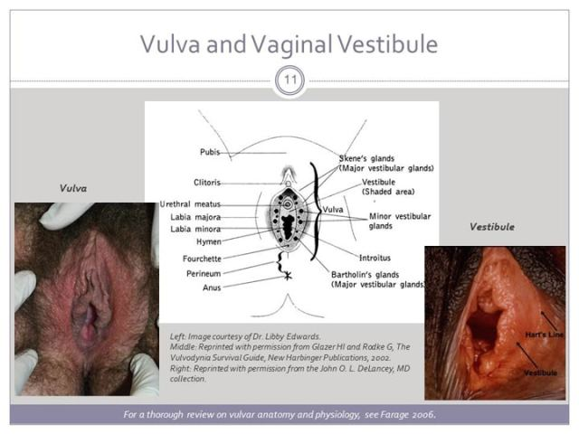 Vulvodynia An Under Recognized Pain Disorder Affecting  Women And Adolescent Girls Integrating Current Knowledge Into Clinical Practice
