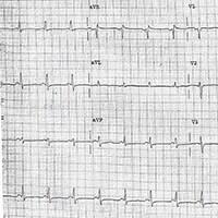 ECG Challenge: Is It Heart Block or Something Else?
