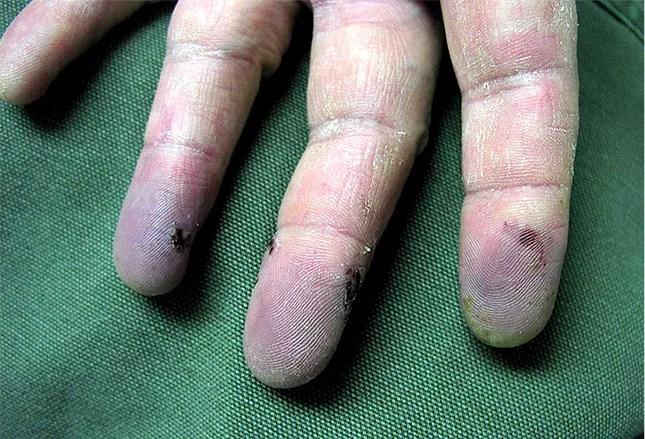 schmerzhafte hande 9 patienten falle