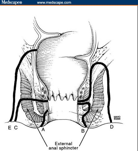Evaluation of Perianal Fistulas in Patients With Crohn's