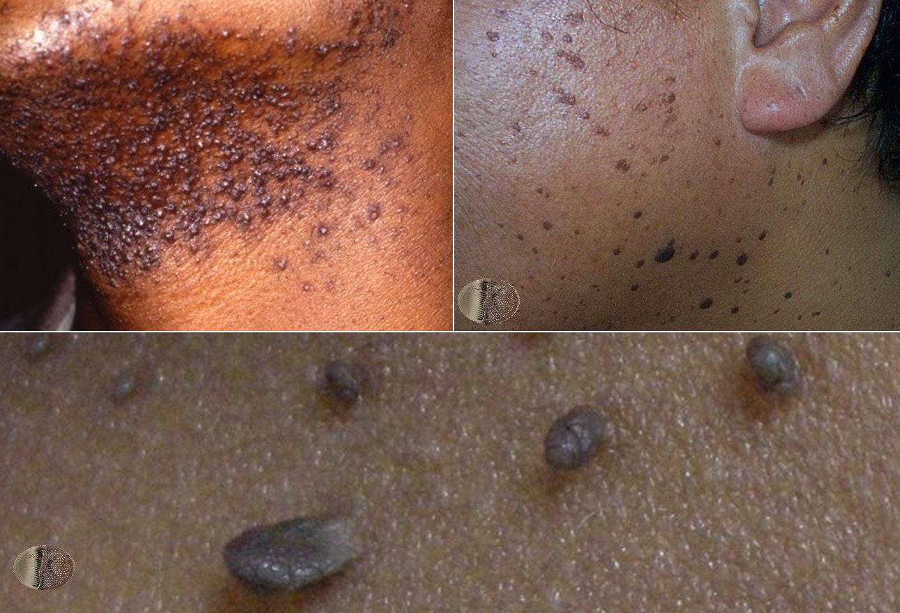 Identifying Lesions On Skin Of Color