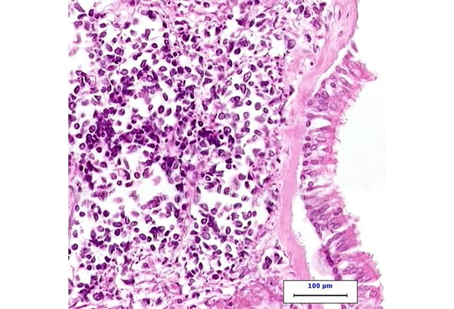 Small Cell Lung Cancer: Beating the Spread