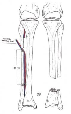 Tibia Reconstruction: Background, History of the Procedure