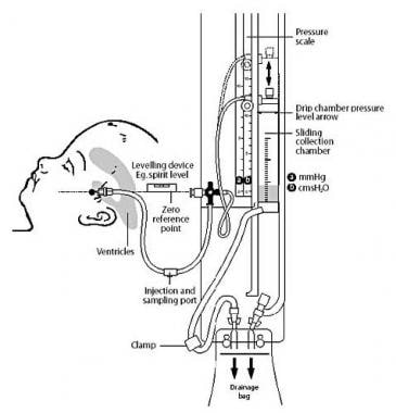 Intracranial Pressure (ICP) Monitors: Products, Design